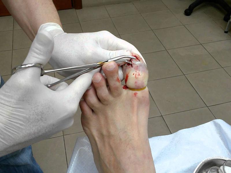 Грибок между пальцами ног опух палец