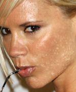 при аллергии лопаются капилляры на лице