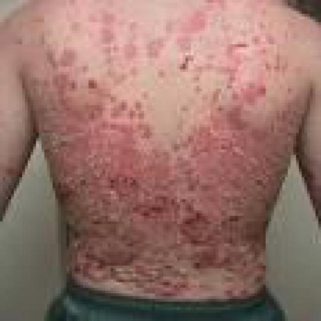 Отзывы о креме здоровье от псориаза