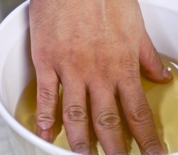 Лечение псориаза в больница - Псориаз. Лечение
