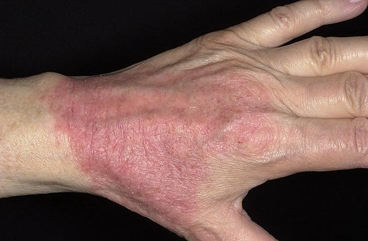 Атопический дерматит и псориаз