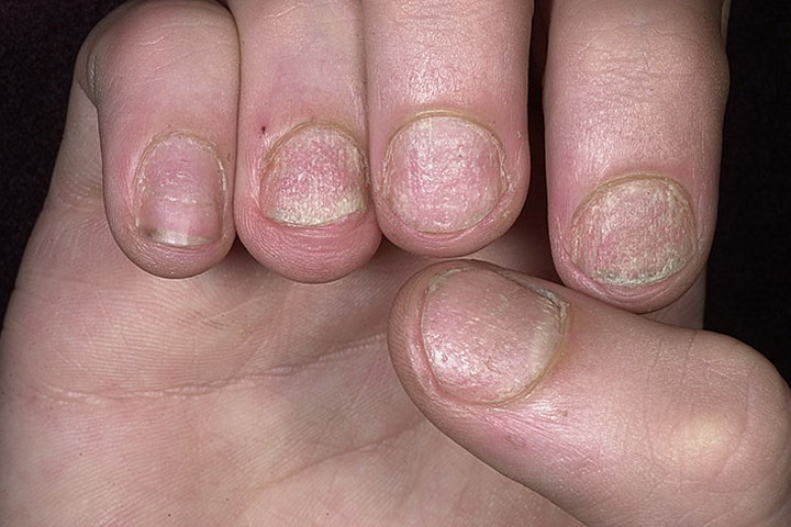 Экзема ногтей